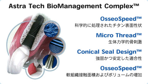 Astra Tech BioManagement Complex™の概要